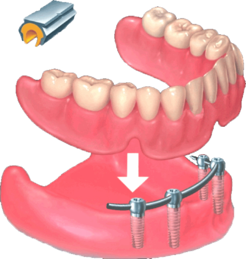 Abnehmbarer Zahnersatz